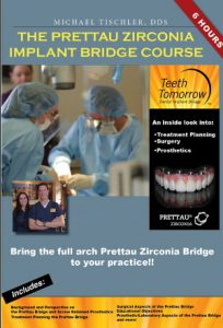 6 Hours of In-Depth Training with Michael Tischler, DDS
